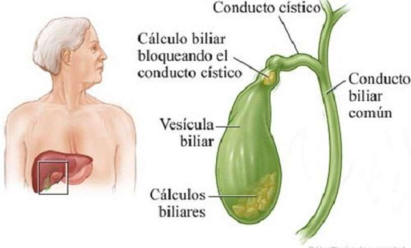 dieta para pacientes calculos biliares
