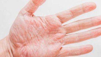 ¿Por qué se pelan las manos?
