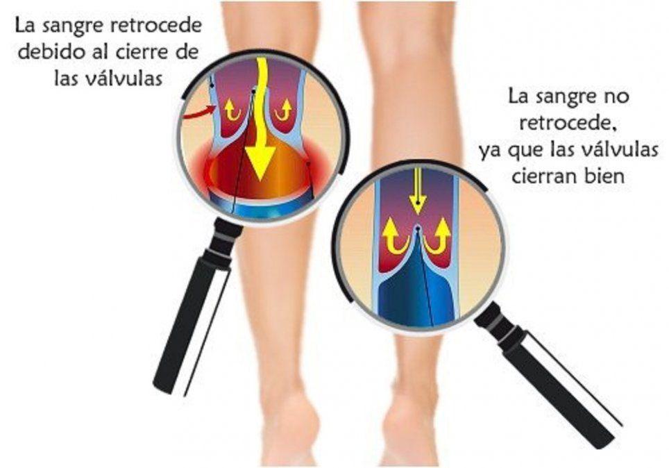 dieta para mejorar la circulacion en las piernas