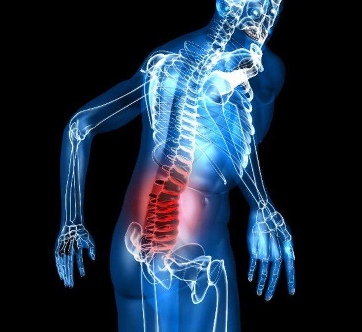 Cómo aliviar el dolor de espalda baja