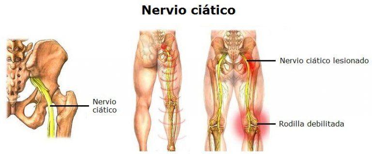 Que se puede tomar para el dolor del nervio ciatico