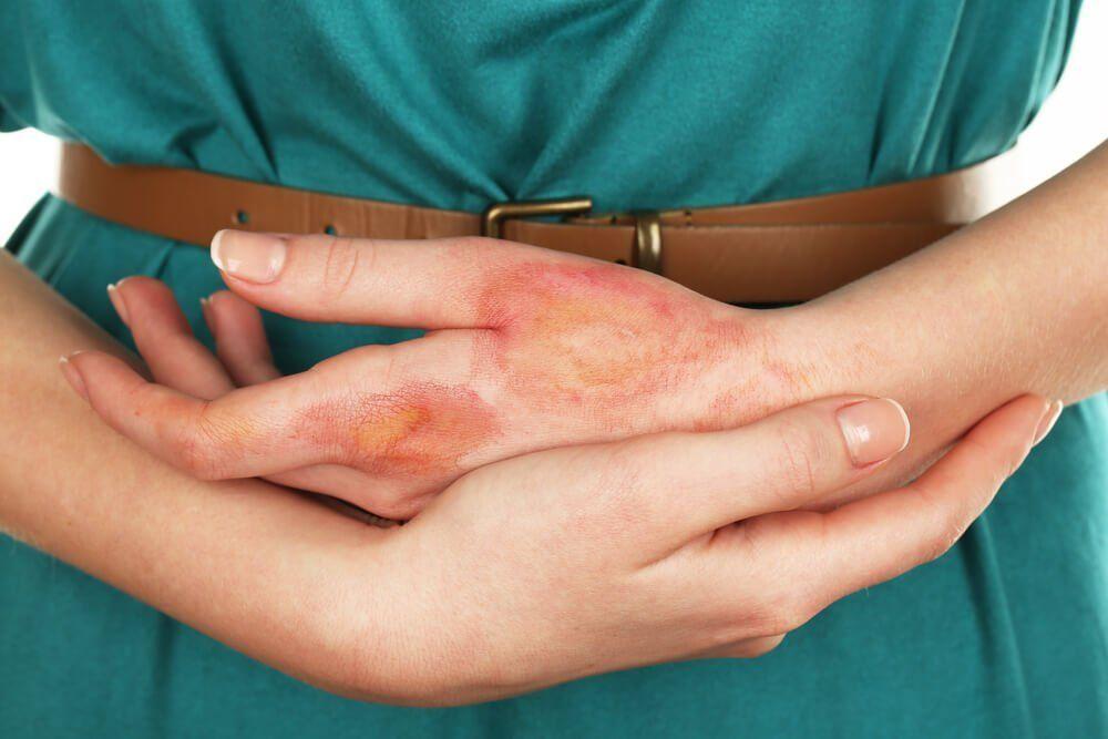 remedios caseros quemaduras piel