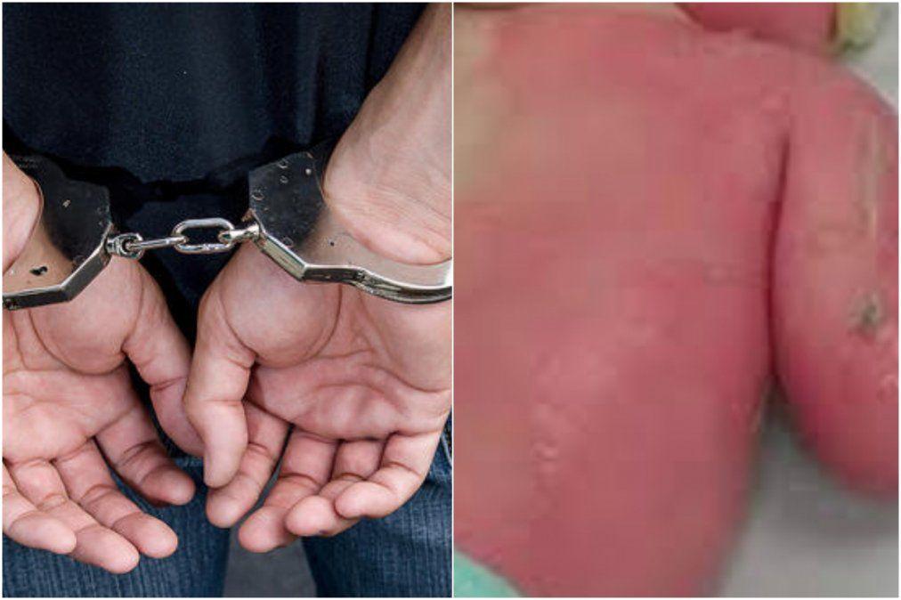 Sigue detenido el hombre que arrojó agua hirviendo sobre su hija