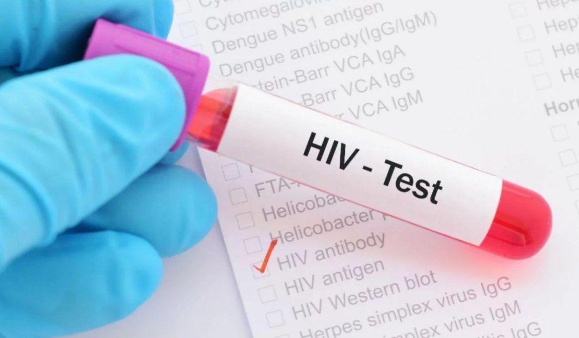 Científicos identificaron un nuevo subtipo de VIH