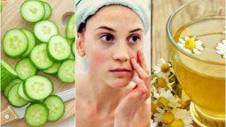 como disminuir las bolsas y ojeras usando 5 ingredientes naturales