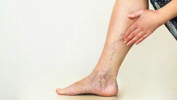 Estiman que 8 de cada 10 personas padecen síntomas de enfermedad venosa
