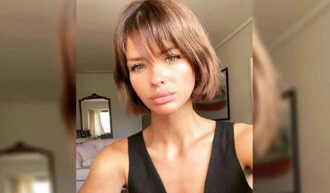 La China Suárez mostró el resultado de su cirugía estética