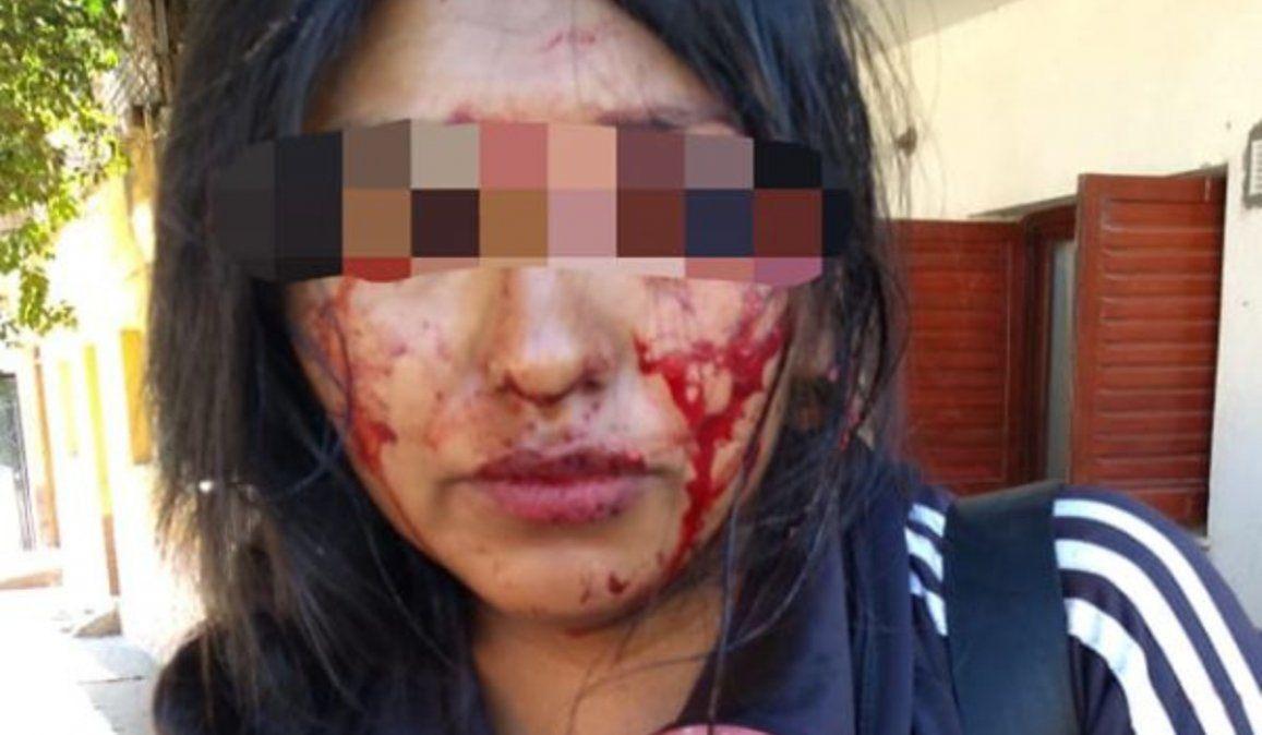 Violento ataque contra una mujer policía en Jujuy