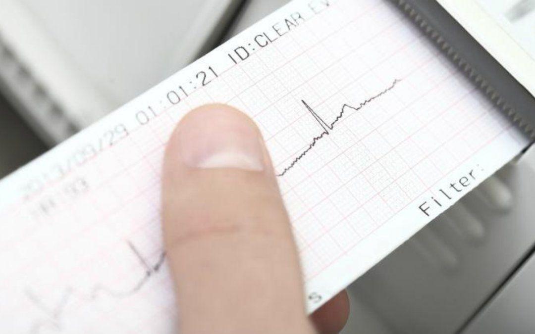 No se requiere electrocardiograma para la inscripción al ciclo lectivo