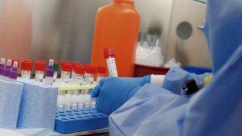 Argentina reportó 79 nuevos casos de coronavirus y ya son 1133 en total