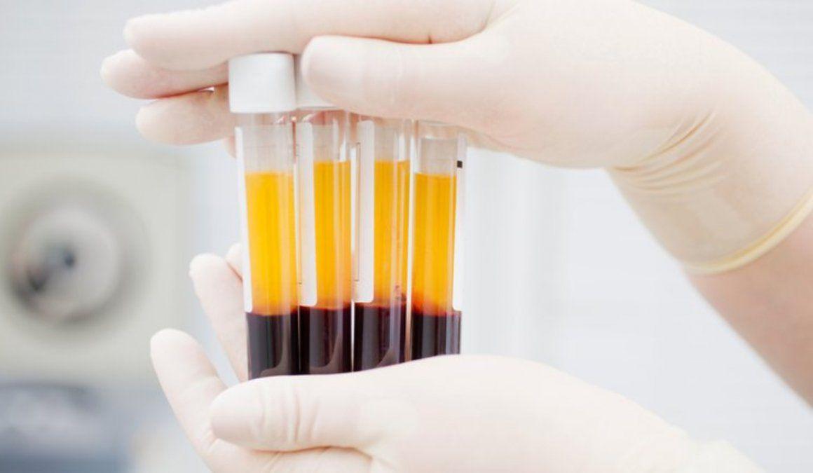 Plasma: qué es, cómo funciona y por qué es uno de los tratamientos contra el COVID-19