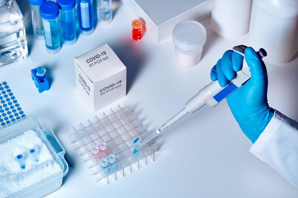 Aprobaron el primer test de diagnóstico argentino basado en tecnología RT-PCR