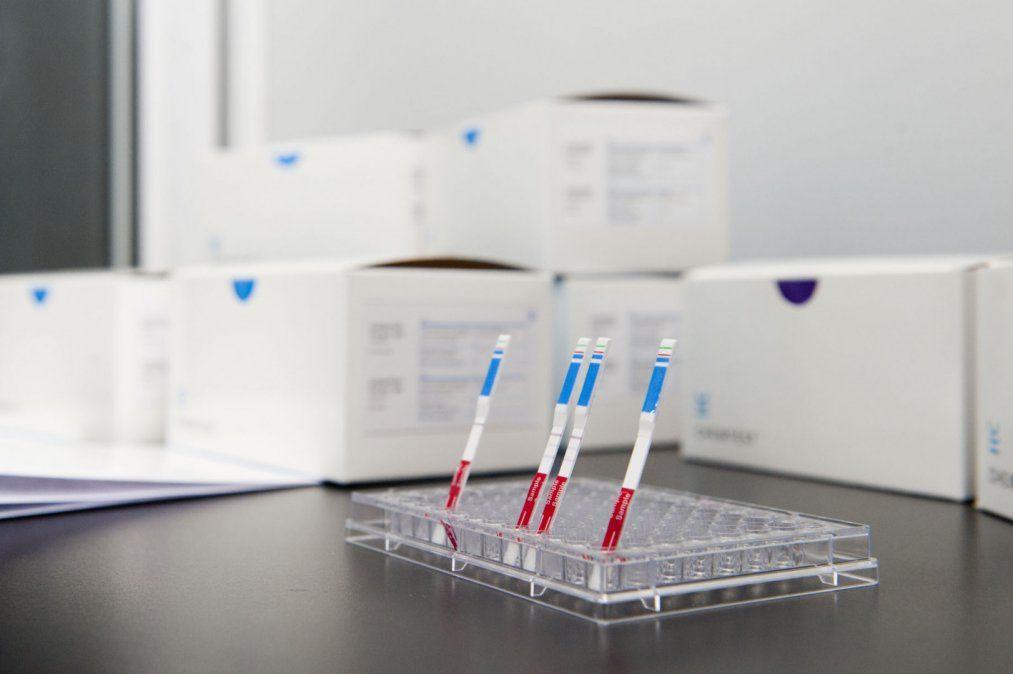 Científicos argentinos crearon un test de covid similar al de embarazo
