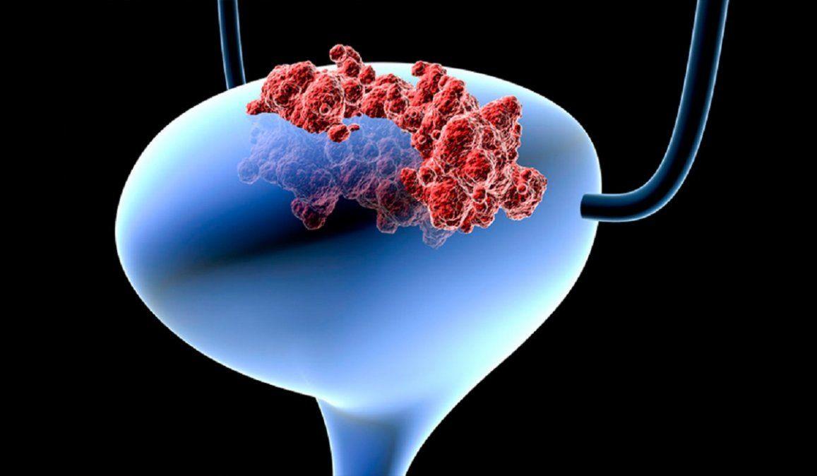 Detalles sobre el nuevo tratamiento para el cáncer de vejiga