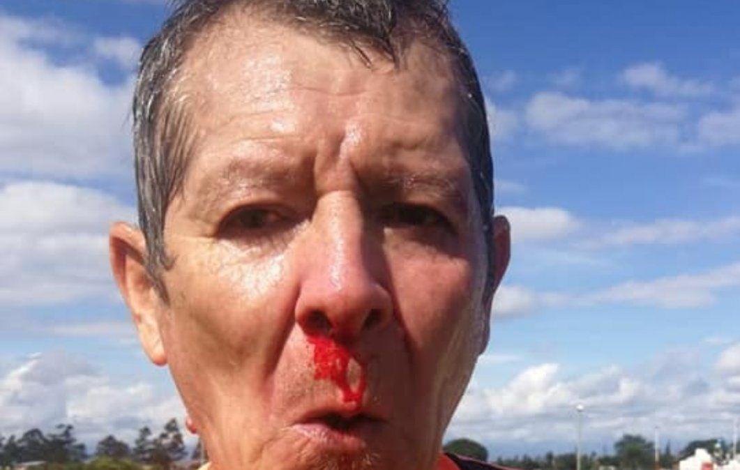 Cobarde ataque a un árbitro de fútbol en San Pedro